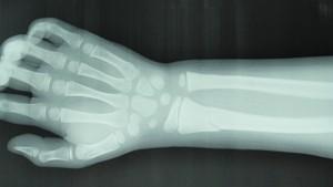 小児橈骨遠位端骨折
