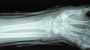 橈骨遠位端骨折 3   整復後
