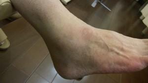 足関節捻挫(靭帯損傷)外観 1