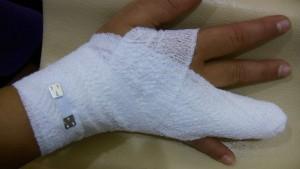 指軟骨損傷 固定 3