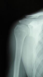 上腕骨大結節骨折
