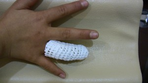 指軟骨損傷 固定 2
